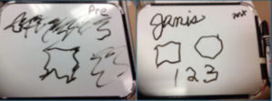 Before and after treatment handwriting samples