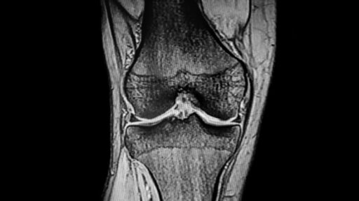 CT Scan Knee joint