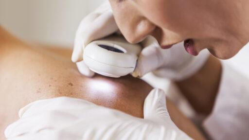皮肤癌护理,医生正在检查背部的痣